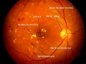 hypertensive retinopathy+medscape 2007-2009 picture 5