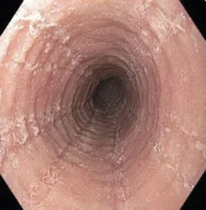 homeopathic remedies for eosinophil esophagitis picture 2