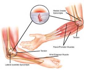 elbow joint pain picture 10