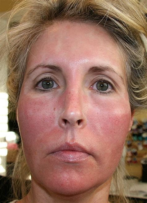 laser treatment for face day after looks like picture 3