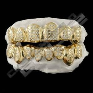 custom gold teeth picture 6