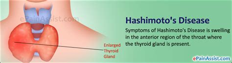 hasimoto disease of the thyroid picture 7
