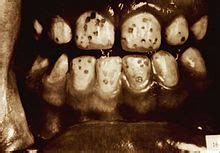 discolored h fluorosis picture 11