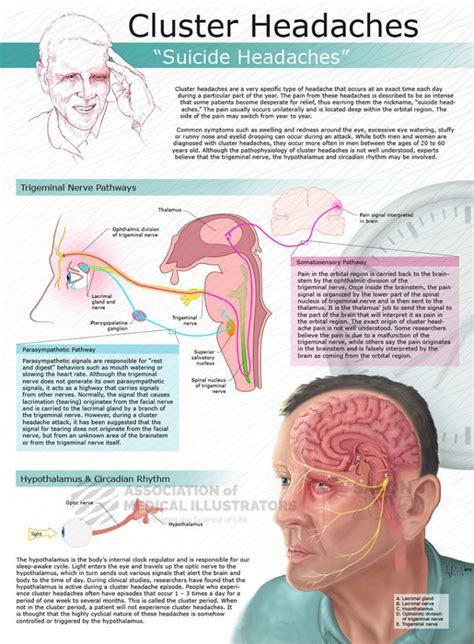 cluster headaches sleep fatigue picture 5