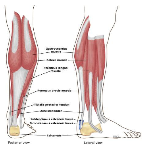 calf muscle pain picture 13