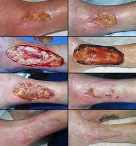 healing from a skin graft picture 10