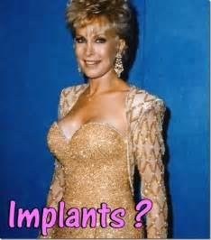 luna breast augmentation michigan picture 5
