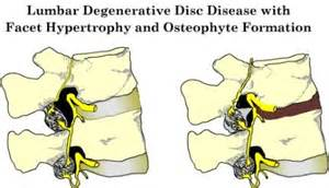 degenerative joint disease of cervical spine picture 8
