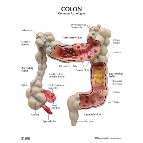 bacterial infection intestines picture 6