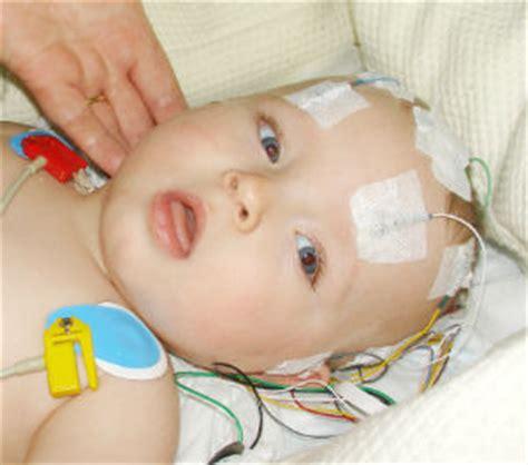 infant bacterial meningitis strokeremove half of brain picture 5