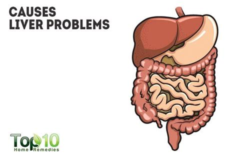 what can cause problems for your liver picture 1