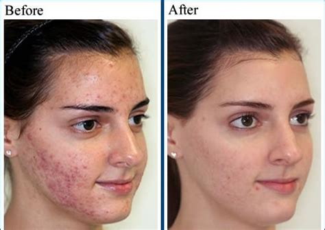 do phytoceramides help acne picture 1