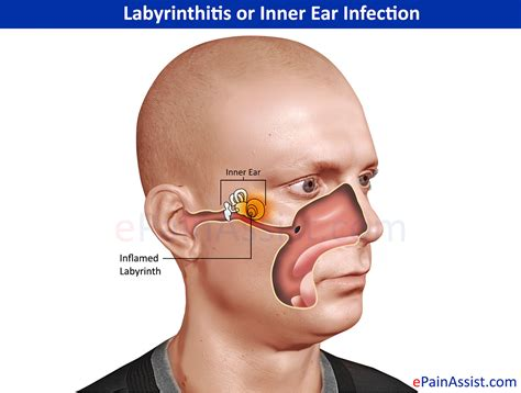 bacterial infections of the inner ear picture 1