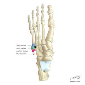 most common injuries to fifth metatarsal phalangeal joint picture 13