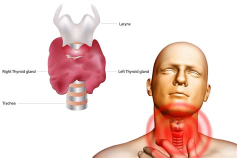thyroid enlargement goiter picture 5
