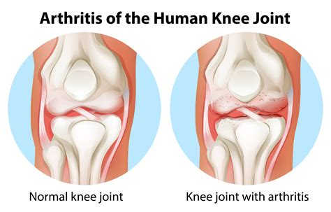 arthritis in every joint of the body picture 3