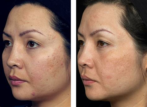 cost of co2 laser for acne scars picture 5