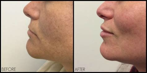 skin needling for plump lips picture 14
