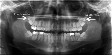 complications with wisdom teeth picture 9