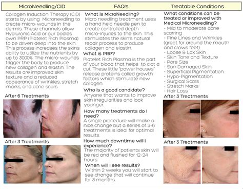 needling for acne scarring picture 14