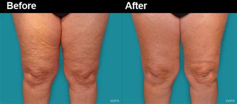 fast temporary cellulite treatment preparation h picture 12