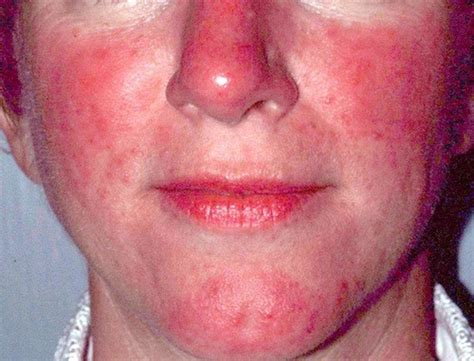 acne and lupas picture 2