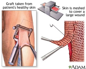 friction burn and skin grafting picture 5