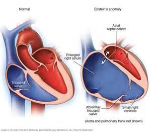 erectile dysfunction ventricle leak picture 1