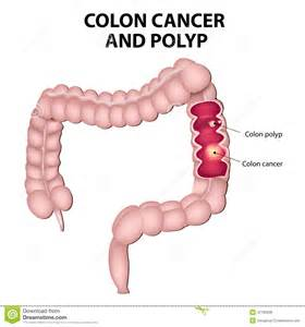 abdominal pain and colon cancer picture 2