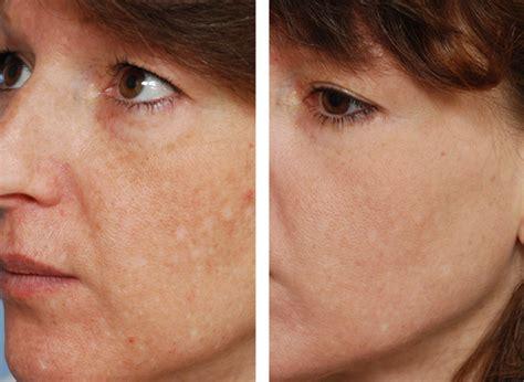 skin resurfacing picture 1