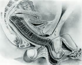 ejaculation mri picture 2