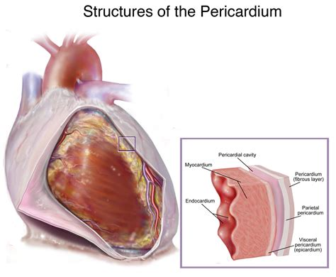 centimeter thickening of heart muscle picture 14