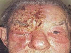shingles fungal meningitis warts headaches picture 2