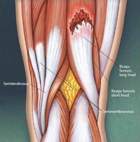 hamstring muscle injuries picture 9