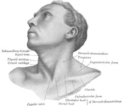 icd 9 enlarged thyroid picture 10