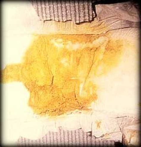 yellow bowel movement causes picture 10