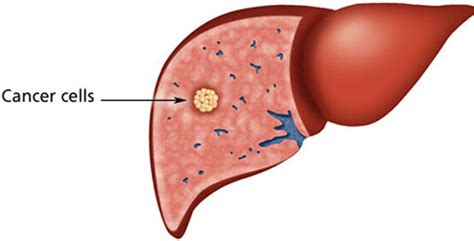 anong sintomas liver cancer picture 3
