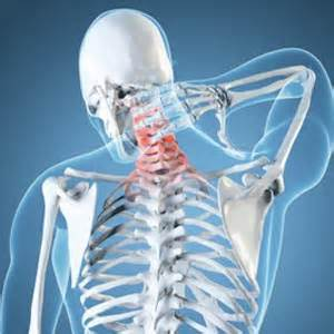 chronic neck and joint pain picture 18