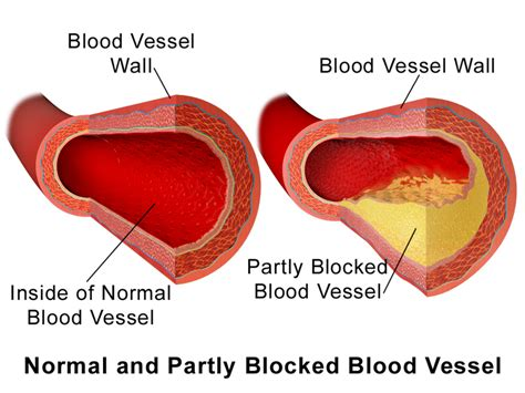 blood vessel or arteries blocked from calcium any picture 2