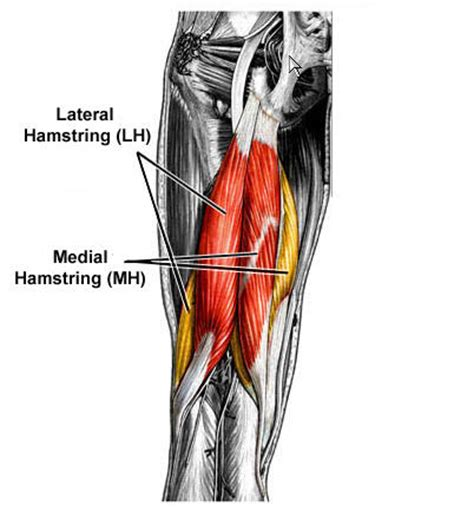 muscle injuries picture 5