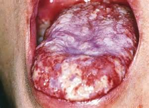 yeast infection mistaken for herpes picture 14