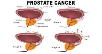 The prostate picture 7