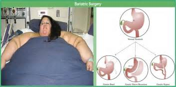 bariatricdoctor middle tn picture 21