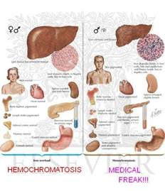 hemochromatotis picture 1