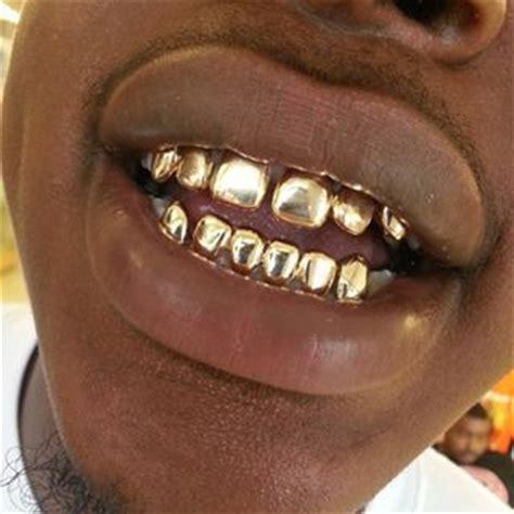 cheap teeth grills picture 1