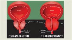 enlarged bladder blood in urine picture 11