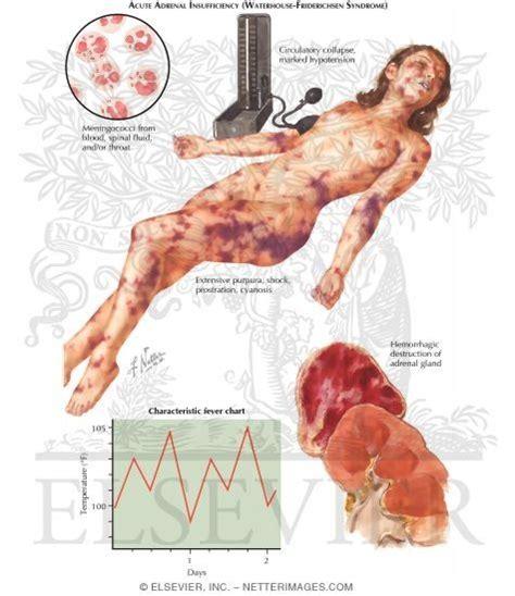 vaccine picture 5