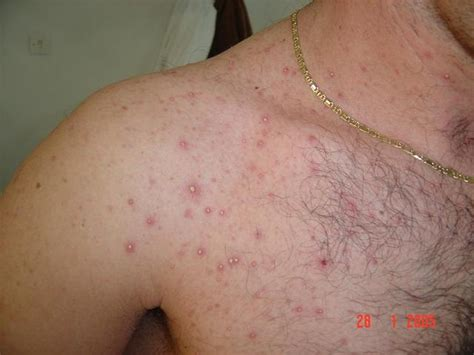 yeast infection and folliculitis picture 3