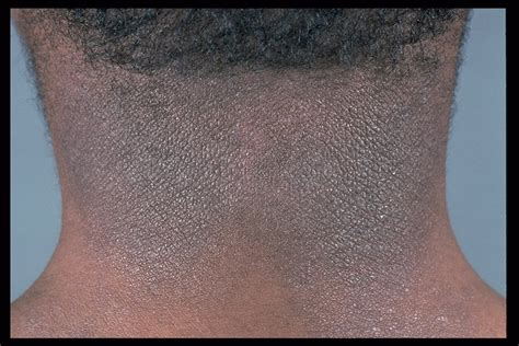 darken eczema skin picture 5