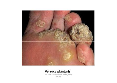 acuminate warts picture 10